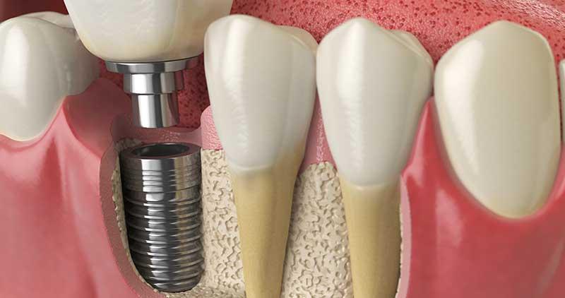 Do Dental Implants Cause Bad Breath?
